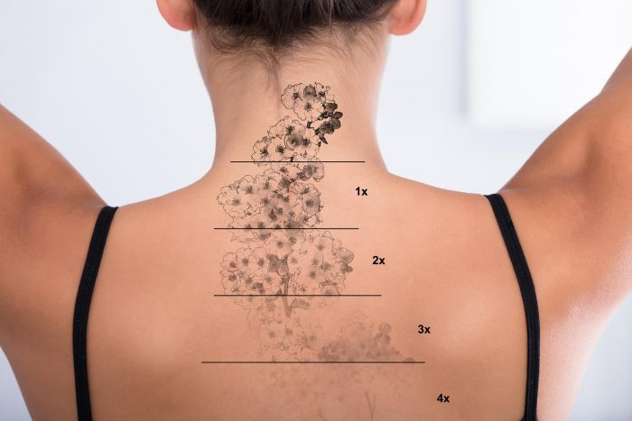 Tattoo Removal On Woman's Back