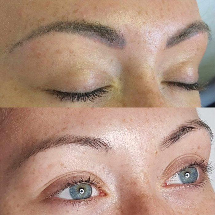 laser removal or permanent makeup